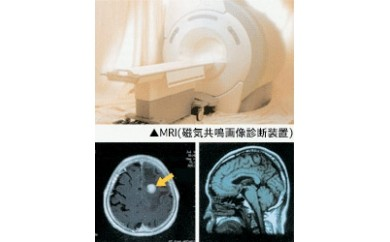 10M06 脳ドックコース